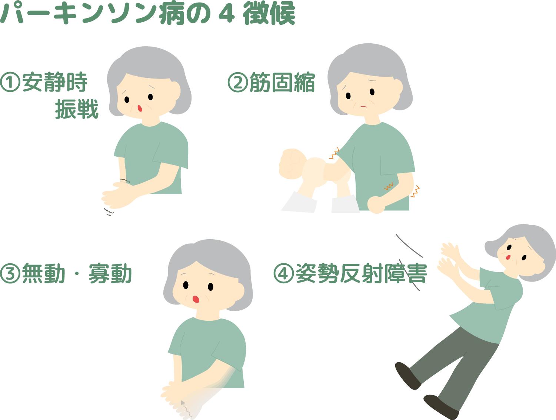 パーキンソン病の4徴候